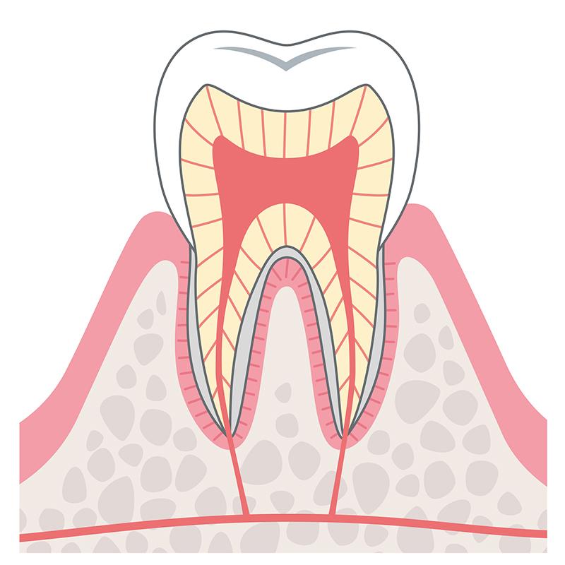 C0:むし歯になる一歩手前の状態