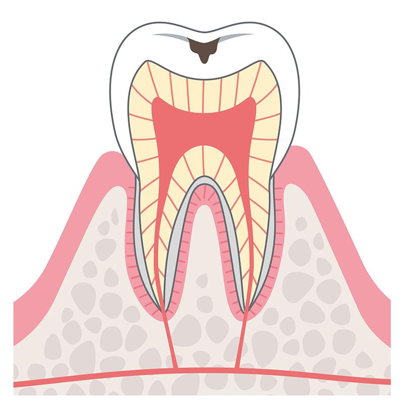 C1:エナメル質に達したむし歯(初期むし歯)