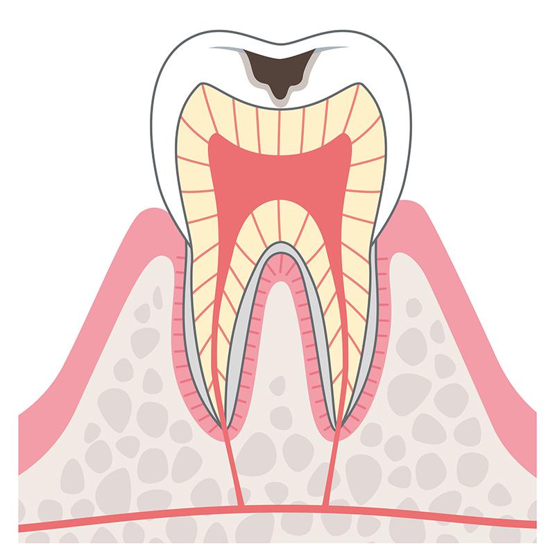 C2:象牙質まで達したむし歯<