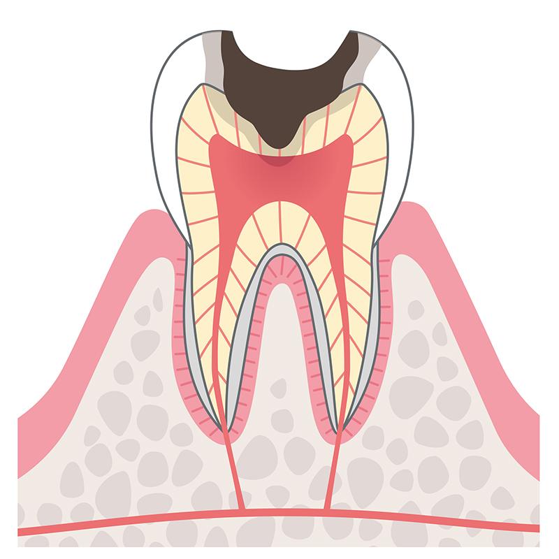C3:歯の神経に達したむし歯