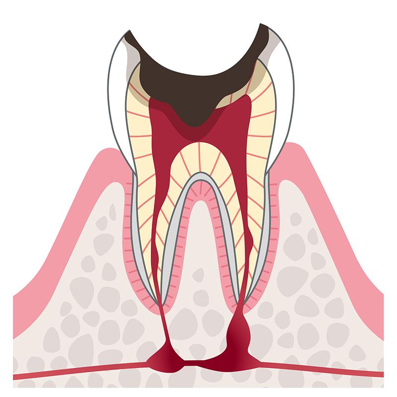 C4:歯の根に達したむし歯